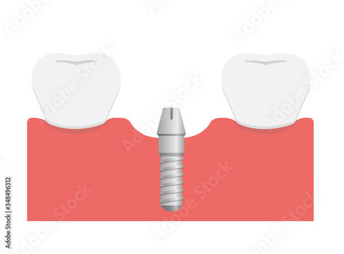 Photo Dental implant flat vector illustration / Attach abutment