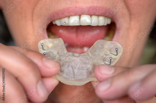 Fotomural Woman suffering from bruxism holding up a guard