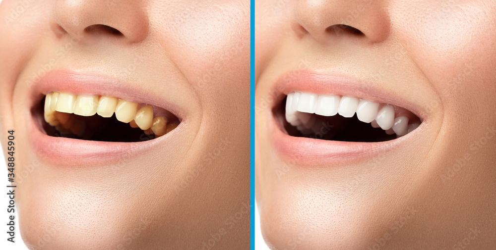 Fototapeta Teeth whitening and hygiene