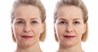canvas print picture - Middle age close up woman happy face before after cosmetic procedures. Skin care for wrinkled face. Before-after anti-aging facelift treatment. Facial skincare and contouring.
