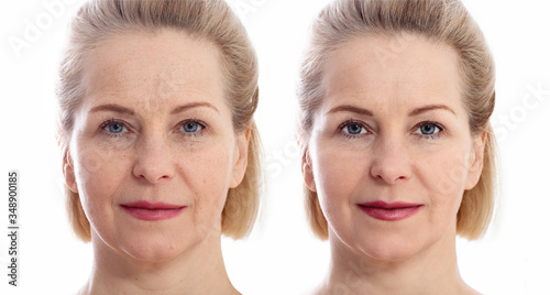 Tablou Canvas Middle age close up woman happy face before after cosmetic procedures