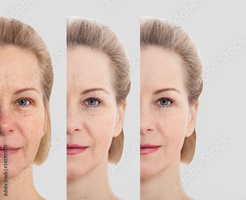 Cosmetic Skin Care For Wrinkled Face
