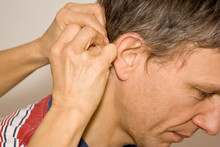 Cropped Hands Of Doctor Inserting Acupuncture Needle Behind Man Ear