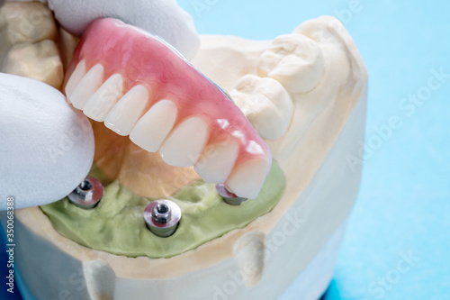 Photo Dental implant work is completed and ready to use/ dental implant temporary abut