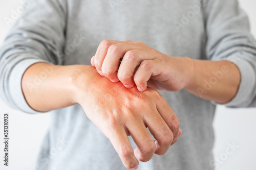 Fototapety, obrazy: Young asian man itching and scratching on hand from itchy dry skin eczema dermatitis