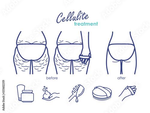 Photo Vector line illustration of cellulite treatment