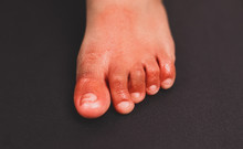Painful Red Inflammation On Toe Called Covid Toe Lesions Strange Sign Of New Coronavirus Symptoms Or Infections