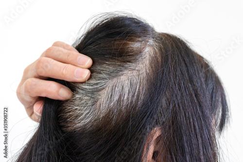 染めた後に生えてきた白髪の高齢女性の頭 Canvas Print