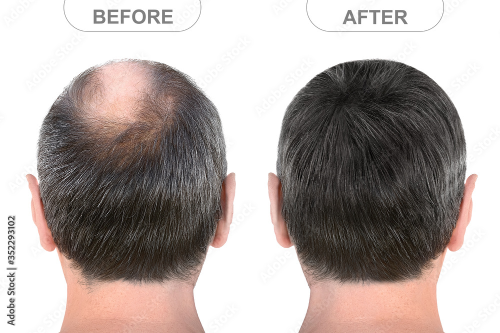 Fototapeta Back view of male head before and after hair extensions