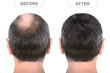 canvas print picture - Back view of male head before and after hair extensions