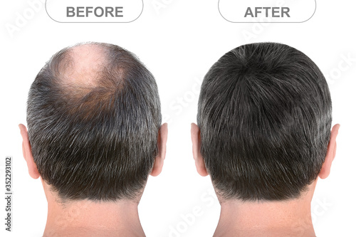 Obraz Back view of male head before and after hair extensions - fototapety do salonu