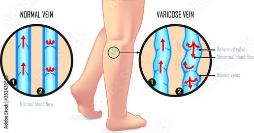 Obraz na plátně Vector illustration of normal vein and varicose vein anatomy