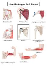 Shoulder & Upper Limb Disease