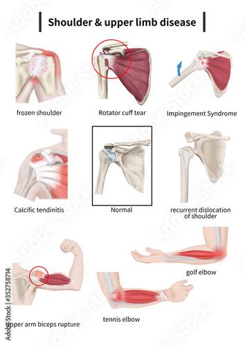 Shoulder & upper limb disease Fototapeta