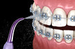 Leinwanddruck Bild - Irrigator cleaning braces with water jet. Medically accurate 3D illustration of oral hygiene.