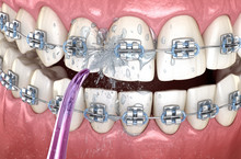 Irrigator Cleaning Braces With Water Jet. Medically Accurate 3D Illustration Of Oral Hygiene.