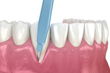 Gum Recession: Soft Tissue Gra...