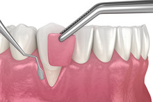 Gum Recession: Soft Tissue Gra...