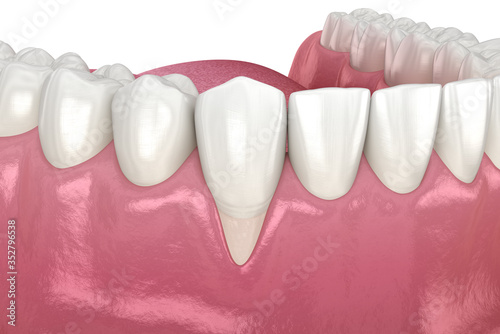 Fotografiet Gum Recession. 3D illustration of Dental problem