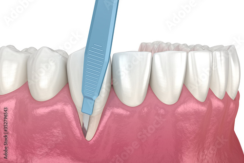 Obraz Gum Recession: Soft tissue graft surgery. 3D illustration of Dental  treatment - fototapety do salonu