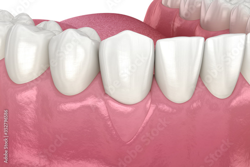 Fototapeta Gum Recession: Soft tissue graft surgery. 3D illustration of Dental  treatment obraz