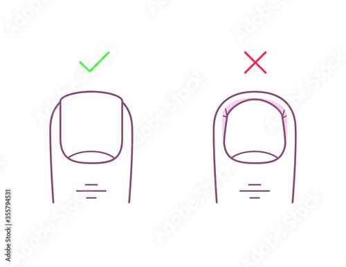 Stampa su Tela How to trim your toenails correctly