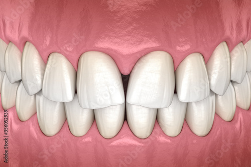 Convergent diastema of central incisors teeth Canvas-taulu