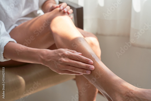 Cuadros en Lienzo Woman takes care of herself, smears feet with cream after depilation, sits on chair, body, sun rays on skin, prepares to go sea summer