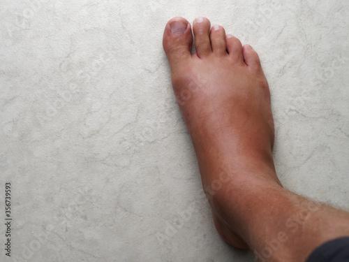 Fotografie, Obraz Swollen leg after a wasp bite.
