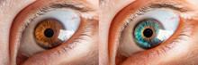 Comparison Of Colored Iris Of ...