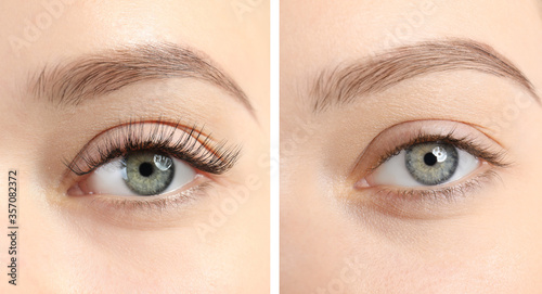 Stampa su Tela Collage with photos of young woman before and after eyelash extension procedure,