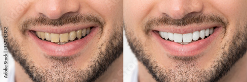 Cuadros en Lienzo Teeth before and after whitening