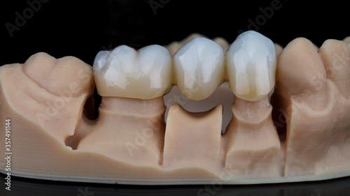 Fotografia, Obraz zirconium dental crowns on a model made on a 3D printer, shot on black glass wit