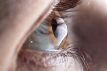 Macro Eye Photo. Keratoconus -...