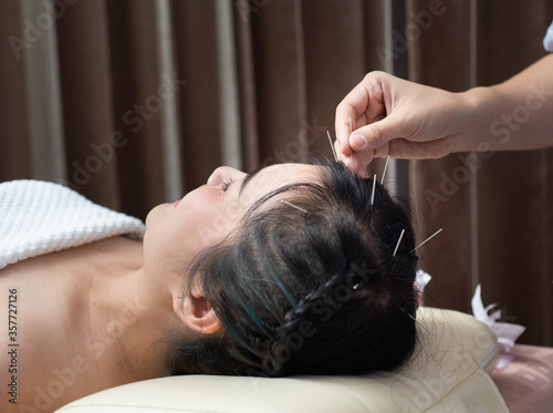 Acupuncture to the head .hair Glabrous Canvas Print