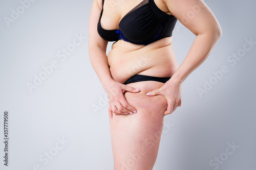 Photo Overweight woman with fat thighs, obesity female legs