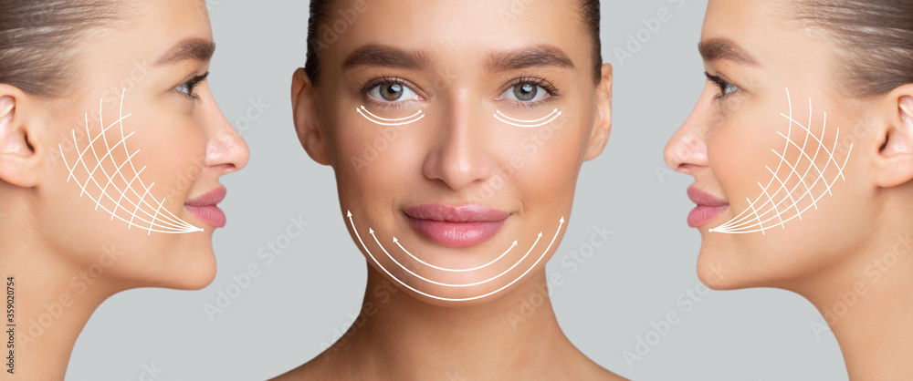 Fototapeta Beautiful woman with arrows on face for lifting skin