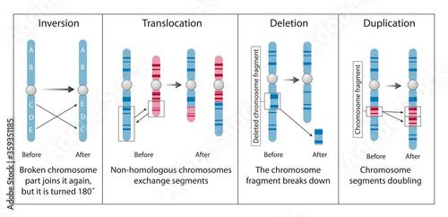 Photo Chromosome abnormality, disorder, anomaly, aberration, or mutation