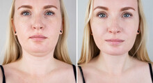 Second Chin Lift In Women. Pho...