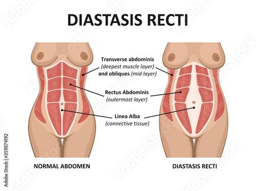 Photo Diastasis recti