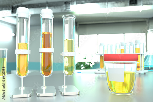 Photo laboratory test-tubes in modern microbiology clinic - urine quality test for asc