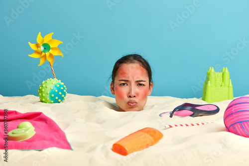 Valokuva Unhappy gloomy Asian woman frowns face reddened by sunburn, worries about her sk