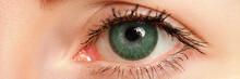 Female Left Blue Eye Tinted In...
