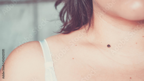Fotografering Close-up Of Mole On Woman Neck
