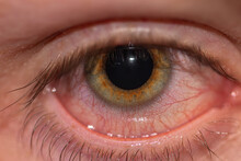 A Close Up Of Someones Eye Whe...