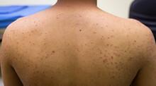 Folliculitis Skin Lesion