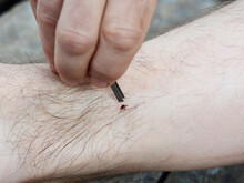 Removing A Blacklegged Tick Using Fine Pointed Tweezers. Matchless Way Of Tick Removal.