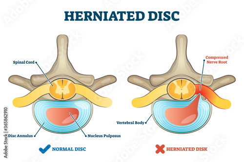 Fototapeta Herniated disc injury as labeled spinal pain explanation vector illustration
