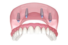 Maxillary Prosthesis With Gum ...