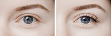 Before And After Eyelash Extension Procedure. Beautiful And Expressive Eyes Of Young Woman With Fake Long Lashes